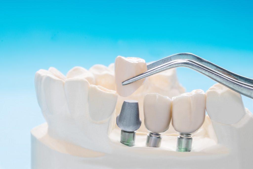 5 ciekawostek o implantach zębowych