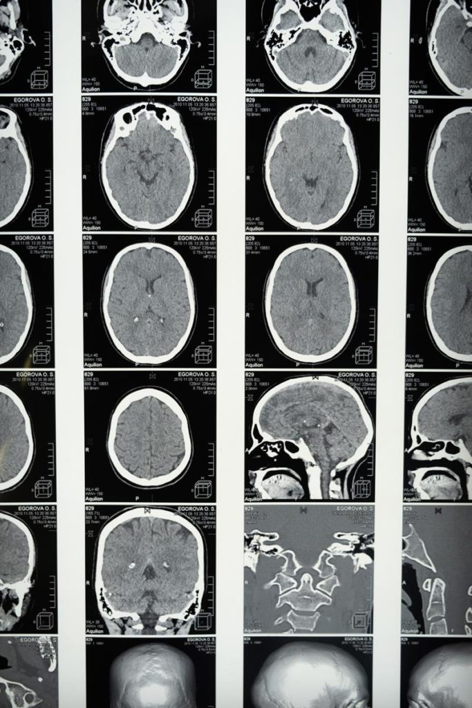 Kto sprawdzi ci twoją fotografię rentgenowską?