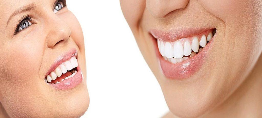 Nakładki do wybielania zębów – 3 powody, dla których naprawdę warto je stosować!